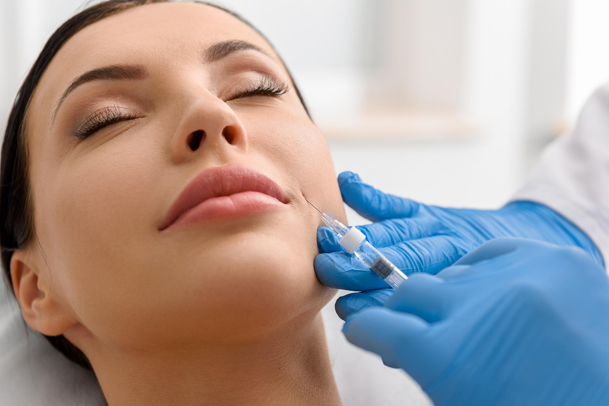 Dermal Filler: Nasolabial Folds