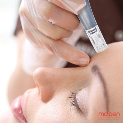 Elevation Med Spa's microneedling service offers a variety of benefits